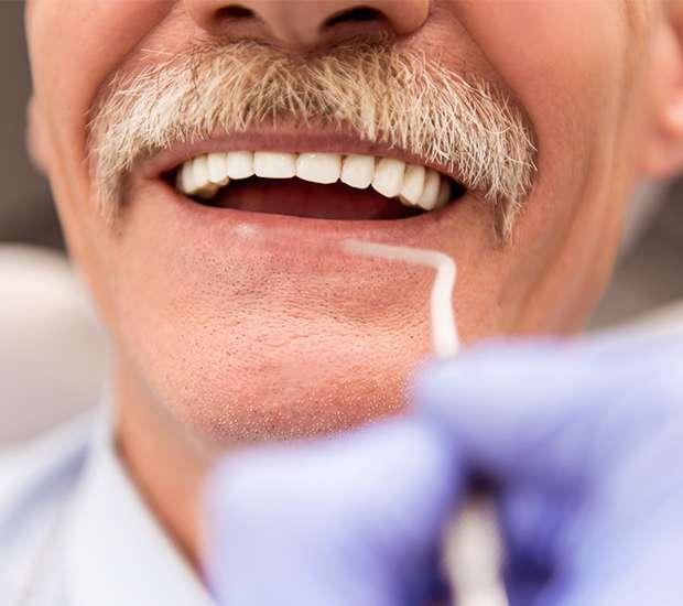 La Verne Adjusting to New Dentures