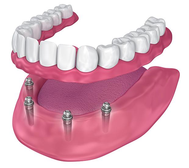 La Verne All-on-4 Implants