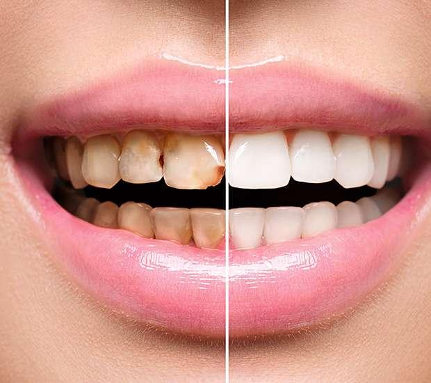 La Verne Dental Implant Restoration