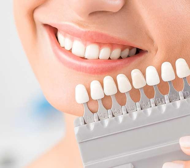 La Verne Dental Veneers and Dental Laminates