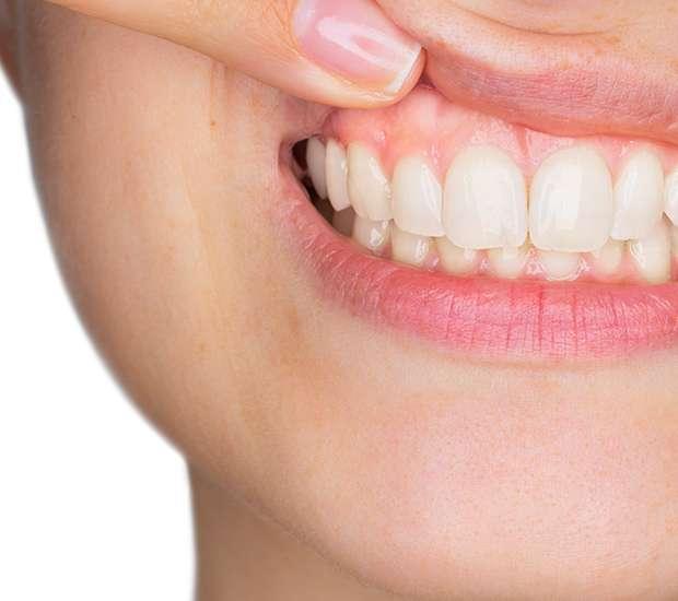 La Verne Gum Disease