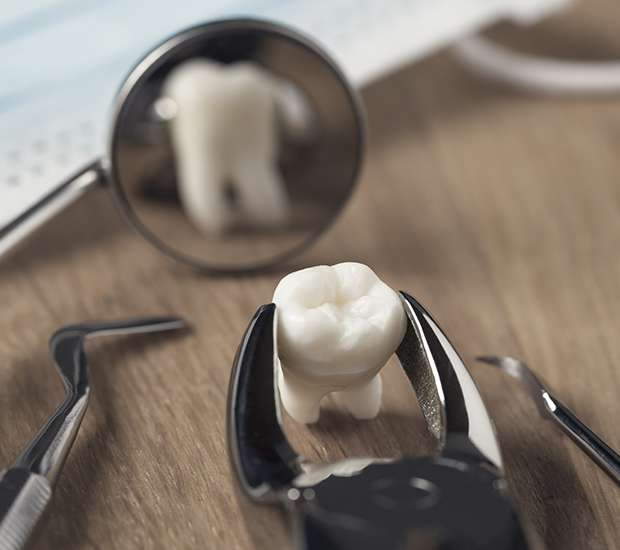 La Verne When Is a Tooth Extraction Necessary
